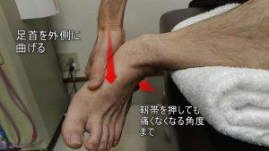 足首を外側に曲げて治療行う