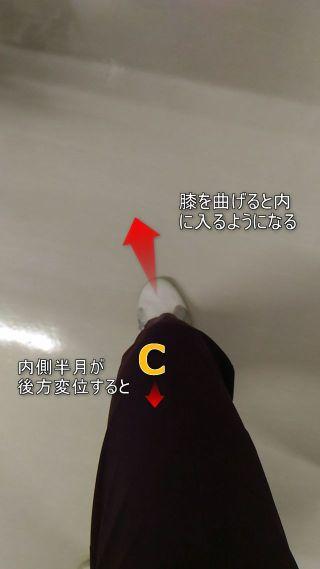 内側半月が後方変位すると膝を曲げた時膝が内に入る